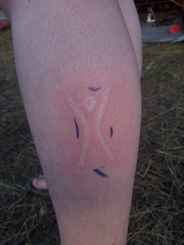 Experimenting With Scarification Taking Care Of My First Brand Fire Ecology
